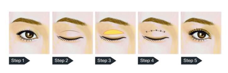 深圳双眼皮手术适应症有这4项