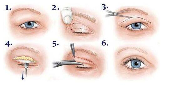 深圳双眼皮手术术前准备的这些一定要谨记