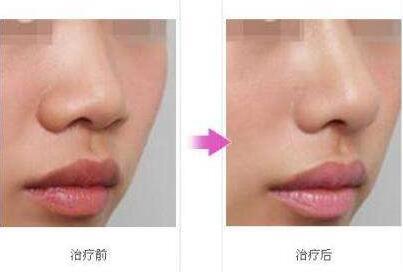 西安鼻孔缩小适合什么人做