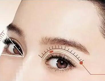 深圳双眼皮手术的方法多吗?