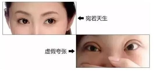 双眼皮术前设计至关重要