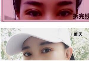 10月4号去淄博壹美整形医院找杨文敬医生做的全切双眼皮+内眼角