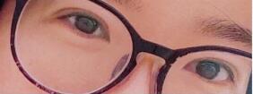 南京省中医院刘宁医生做的全切双眼皮案例的效果图