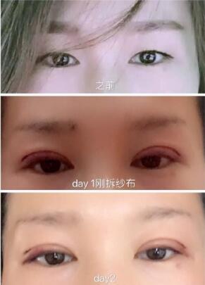 上海交通附属九院周一雄医生做的全切双眼皮案例效果好不好