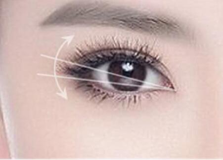 这样子的双眼皮宽度才适合你