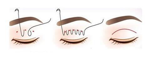 不同双眼皮宽度适合每个不同的人