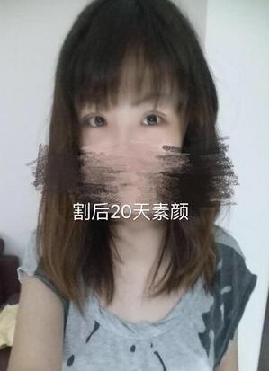 分享一下河南省人民医院眼科做全切双眼皮+内眼角真实案例