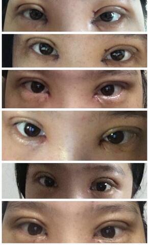 分享一下在北京八大处石蕾医生做的全切双眼皮手术真实案例