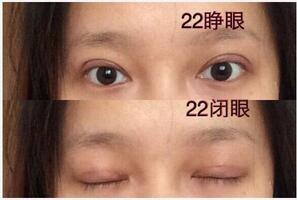武汉同济王海平医生做全切双眼皮真实案例分享