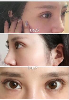中国鼻祖南京定制中心朴光哲为我做了鼻综合整形手术案例