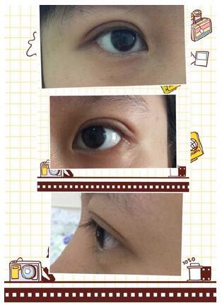 武汉协和孙家明医生为我做了全切双眼皮手术案例