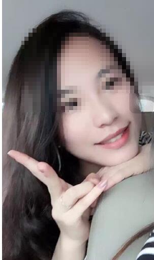 贵阳美莱吴中望医生做的鼻综合整形手术案例 效果很是不错