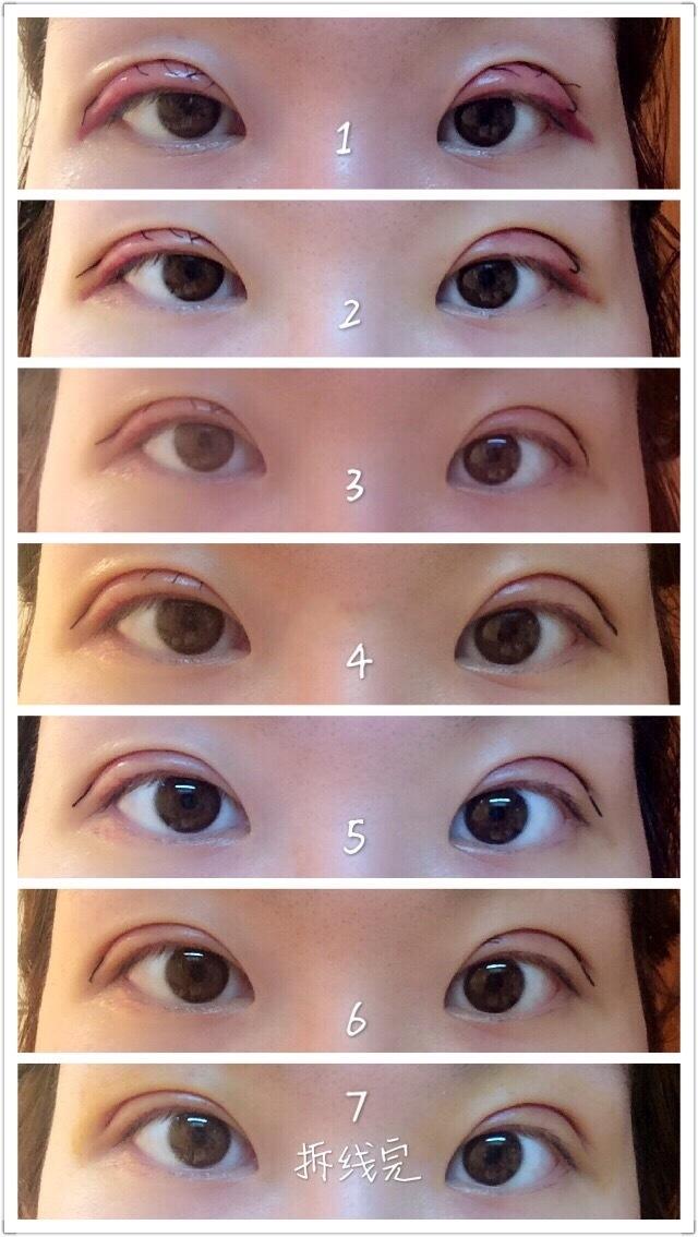 上海九院宋欣医生做的全切双眼皮案例 效果是这样的
