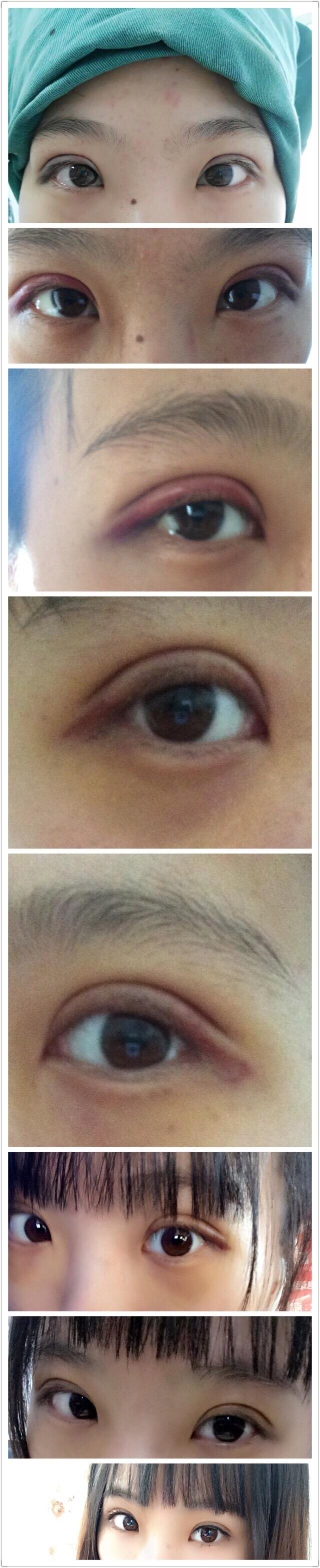 南昌二附院吴舒医生做的韩式三点双眼皮案例 看着很自然哦