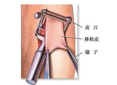 疤痕手术治疗会给手术患者带来什么好处?