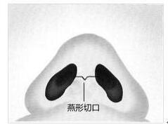 带你走进南宁美丽焦点焦俊光院长的鼻综合整形
