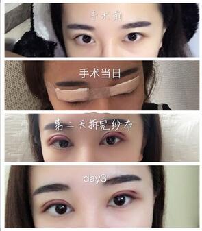 分享成都米兰柏羽高亮医生做的全切双眼皮、内眼角真实案例