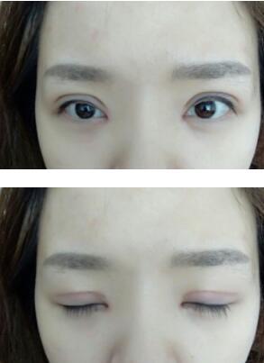 成都华美紫鑫陈杨医生做的全切双眼皮+内眼角案例