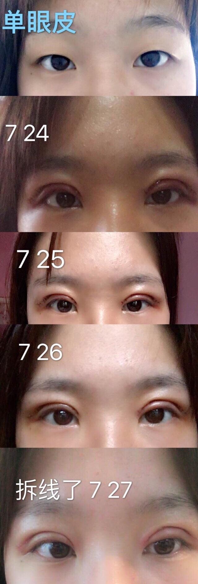 北京八大处陈文医生做的全切双眼皮案例 说说手术的过程