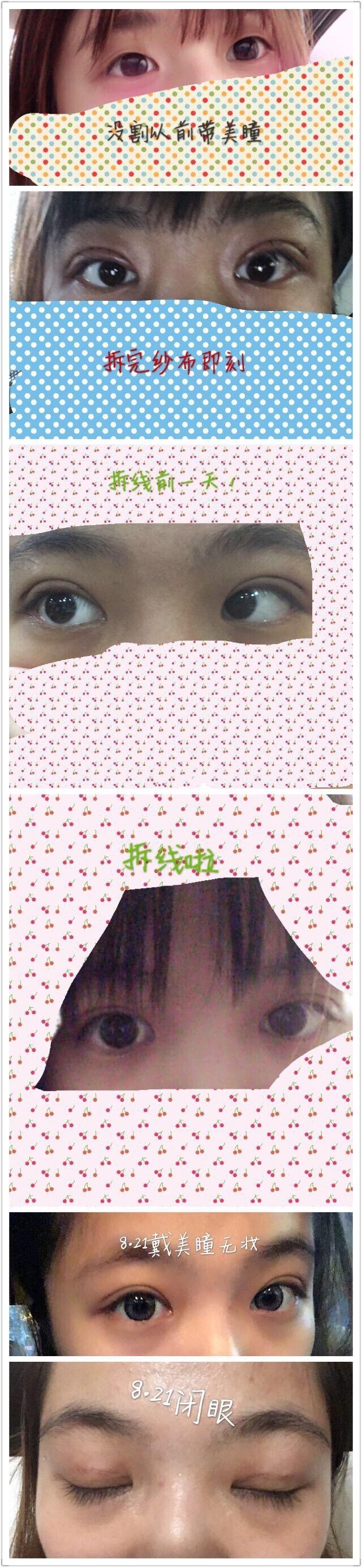 上海九院罗敏医生做的微创双眼皮案例 看看效果如何