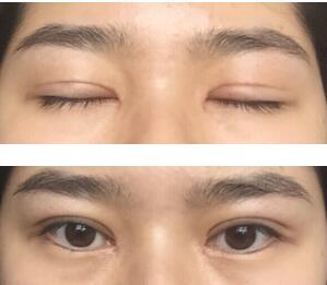 江苏省中医院刘育凤医生做的全切双眼皮+内眼角案例 这是我的感想