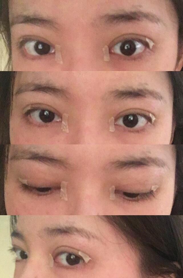 今天分享一些我去成都西婵找王勇丁医生做的微创双眼皮+内眼角