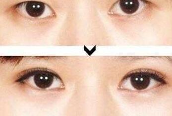 深圳双眼皮术前需要准备些什么