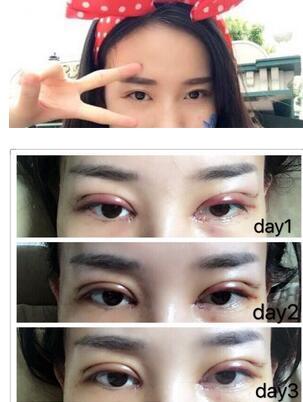 山东淄博一美天成杨文敬做的全切双眼皮手术真实案例分享