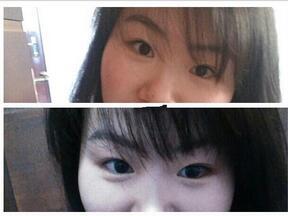 分享一下陕西省人民医院做三点双眼皮+内眼角真实案例
