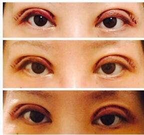 分享北京八大处陈文做双眼皮修复真实案例 效果棒棒哒