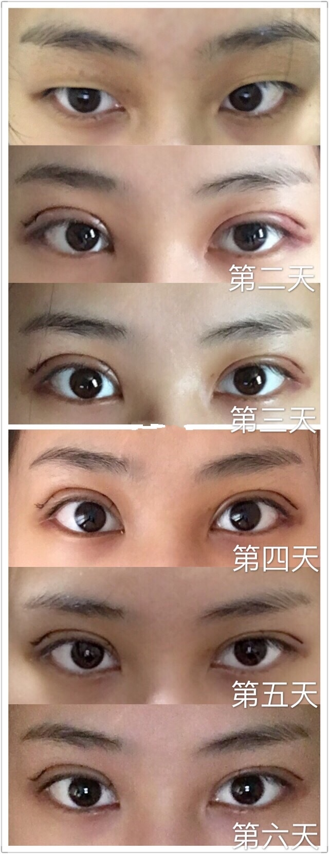 上海九院朱慧敏医生全切双眼皮+去皮去脂案例 给大家看看咯
