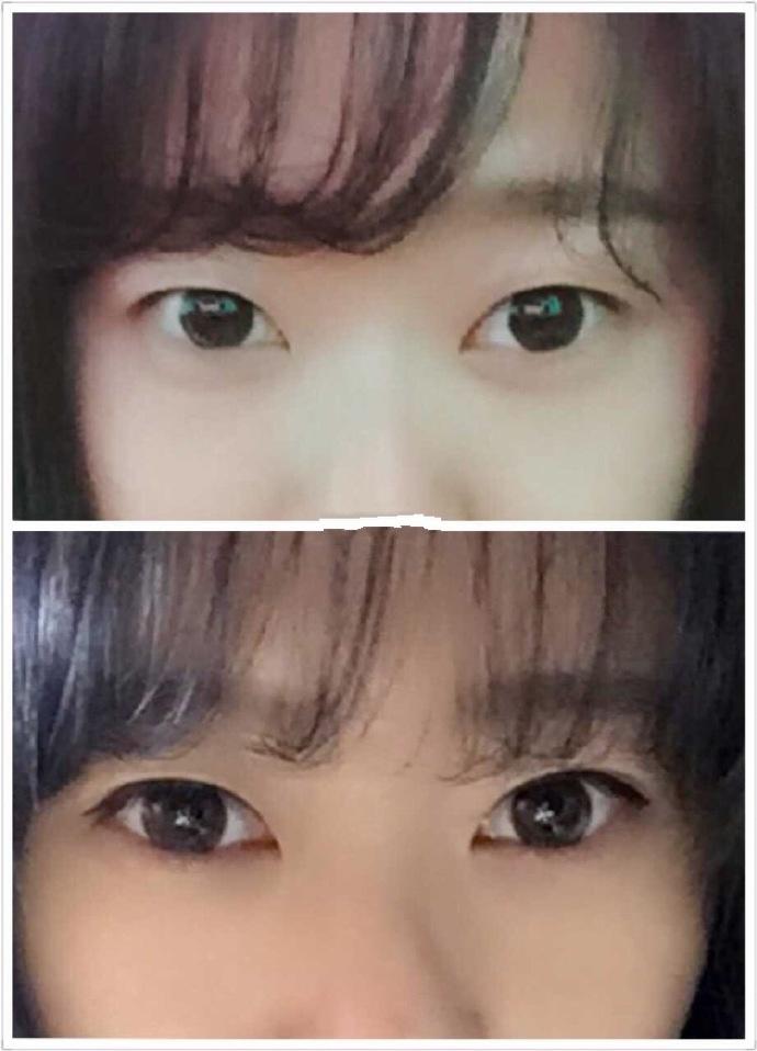 大连瑞丽王苓医生做的双眼皮+内眼角案例 给大家看看效果图