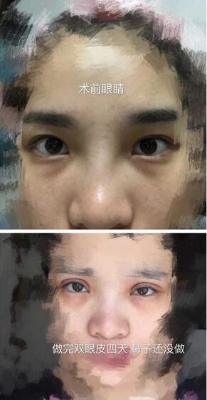 分享一下深圳北大医院崔永言医生处做的全切双眼皮真实案例