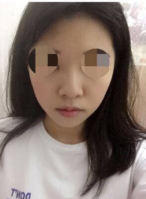 广州中山二院海珠分院陈宇宏医生做的鼻翼缩小真实案例