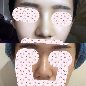 分享在重庆天妃整形美容医院做的鼻综合整形手术真实案例