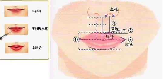 例假期间可以注射玻尿酸丰唇吗?