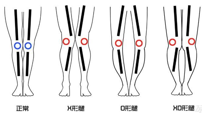 做O型腿矫正的时候这些是需要注意的