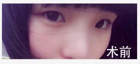 杭州悦可高寿松医生做的全切双眼皮+去皮去脂案例 心路历程分享