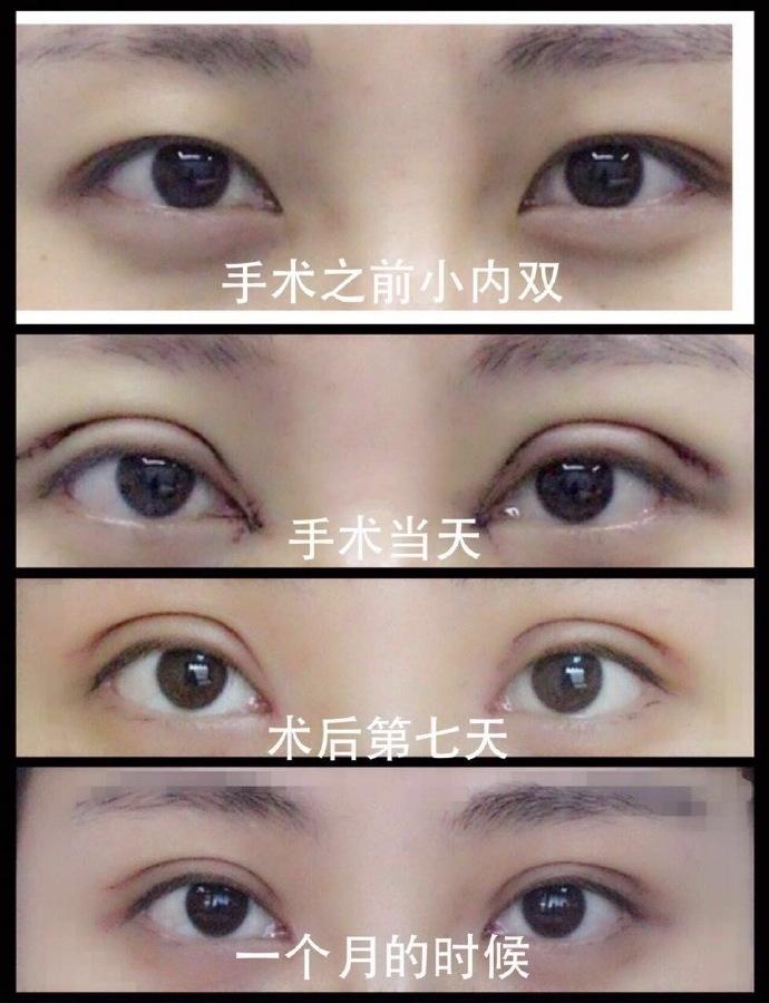杭州悦可高寿松医生做的全切双眼皮+内眼角 看现在的恢复还不错