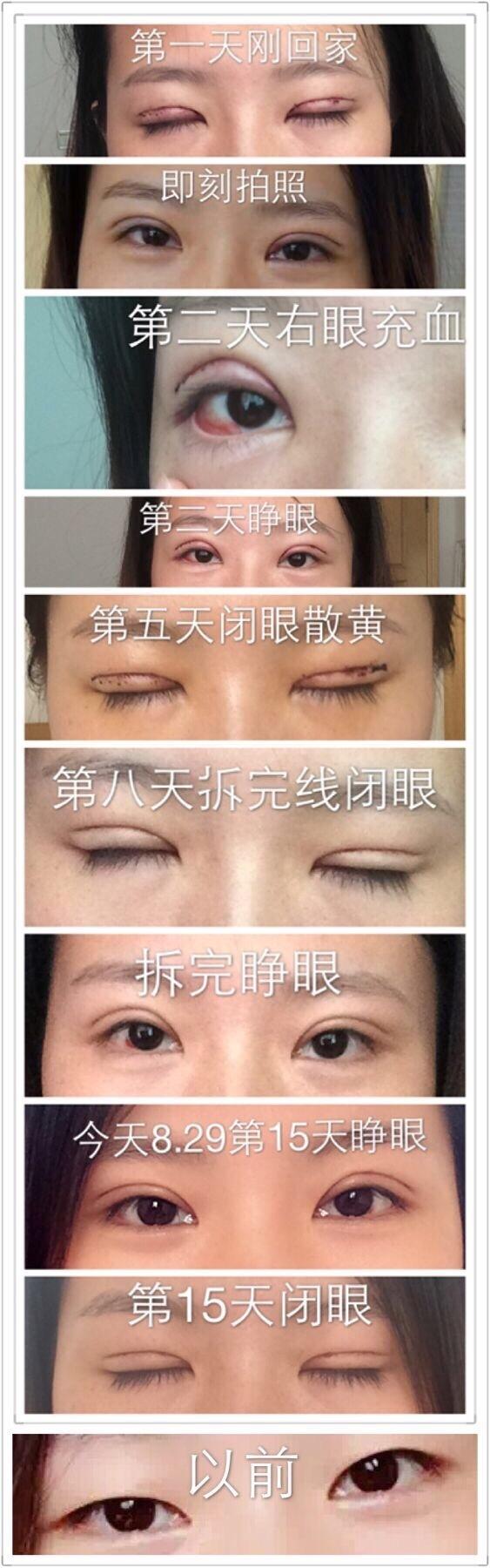 湖州第九八医院李晨医生做的全切双眼皮案例 我很满意了