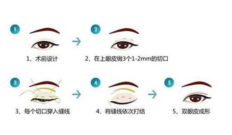 深圳双眼皮手术材料多不多