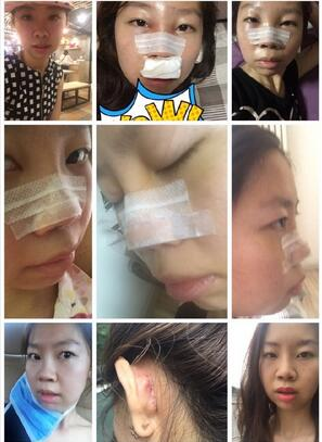 分享一下北京八大处耳软骨隆鼻真实案例 效果很不错
