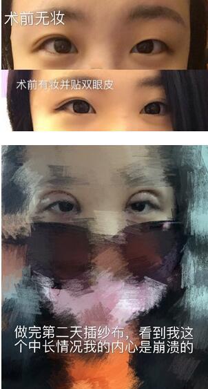分享北京八大处尹宏宇做的全切双眼皮真实案例 拥有大眼睛
