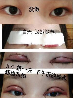 分享杭州时光吕敏全切双眼皮真实案例 效果很不错
