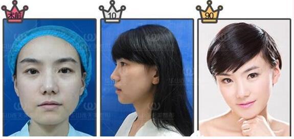 【整形品牌】追求精准数据化丰胸的杭州华山连天美高俊明院长
