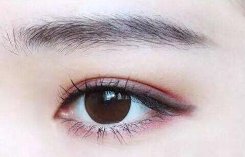 深圳双眼皮手术材料分别是什么