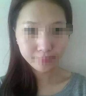 上海华美隆鼻+自体脂肪填充额头、面颊案例 前后对比效果图