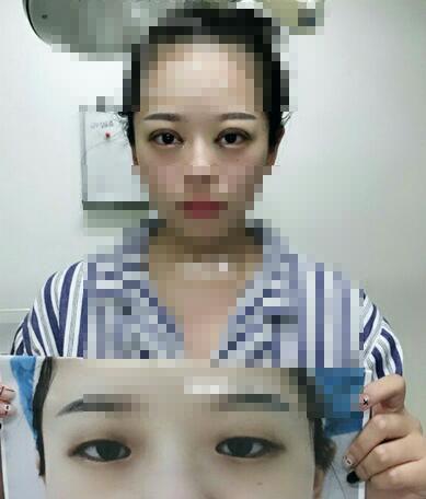 全切双眼皮手术恢复15天