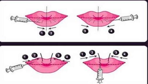 注射丰唇选择哪种材料更适合自己