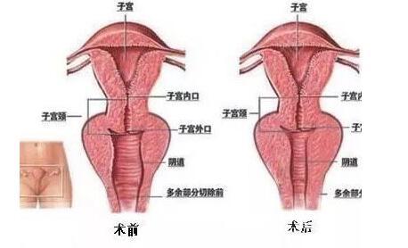 女性阴道松弛的危害多不多